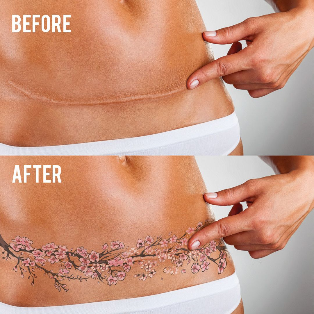 46f6ea5b72daa tummy tuck scar cover tattoo - Google Search