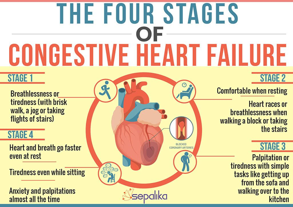 Congestive Heart Failure Chf Symptoms Stages Life Expectancy
