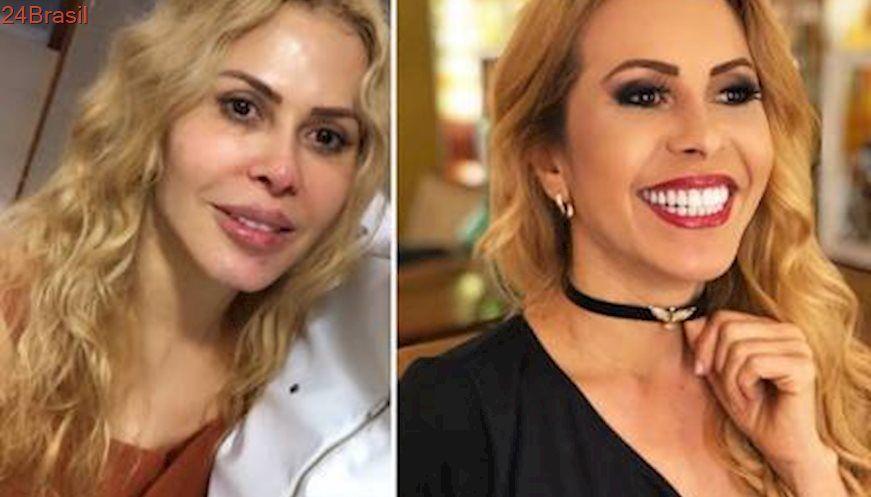 Joelma Mostra Antes E Depois Da Harmonizacao Facial Com Imagens