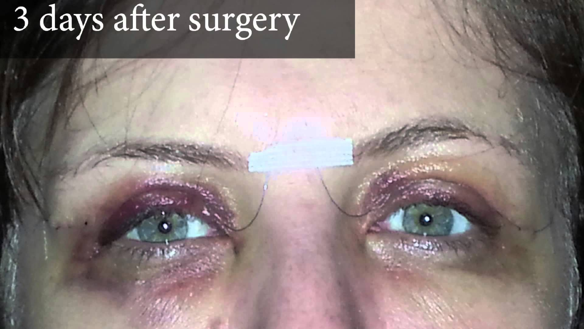 Eyes Brows Eyelid Surgery Brow Lift Surgery Eyelid Surgery