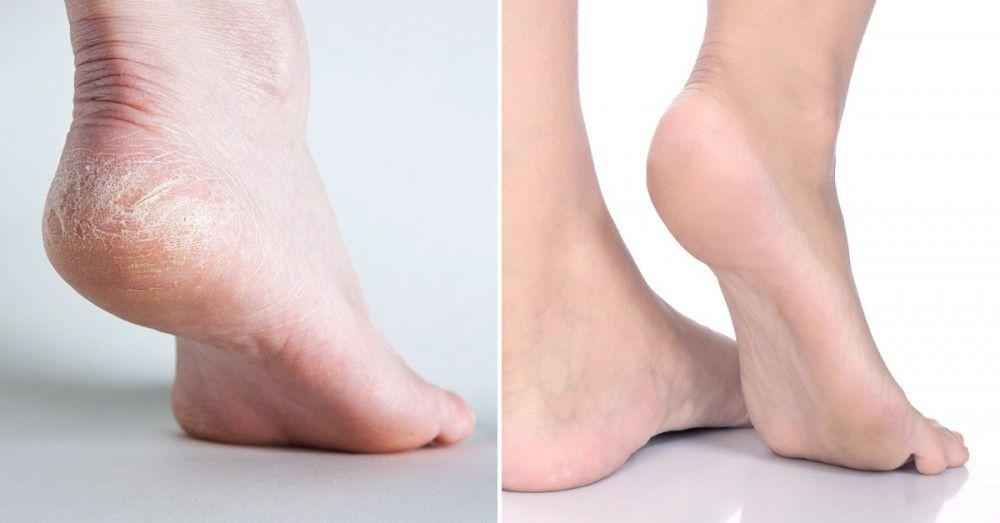 Elimina las callosidades de los pies con bicarbonato de sodio | Notas | La Bioguía