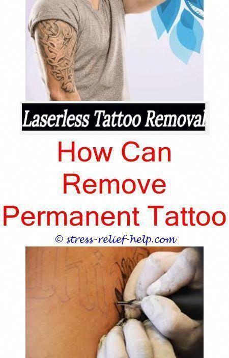 tattoo needles diy tattoo removal - tattoo removal cream ...