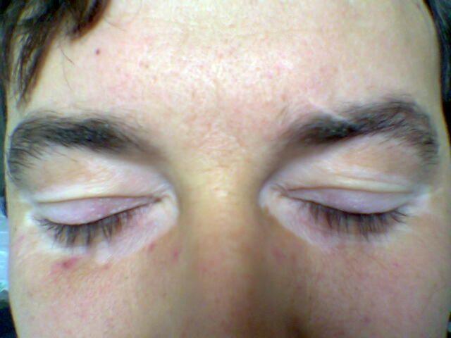Remedies Of Vitiligo In Astrology-Vitiligo Treatment Uvb Light