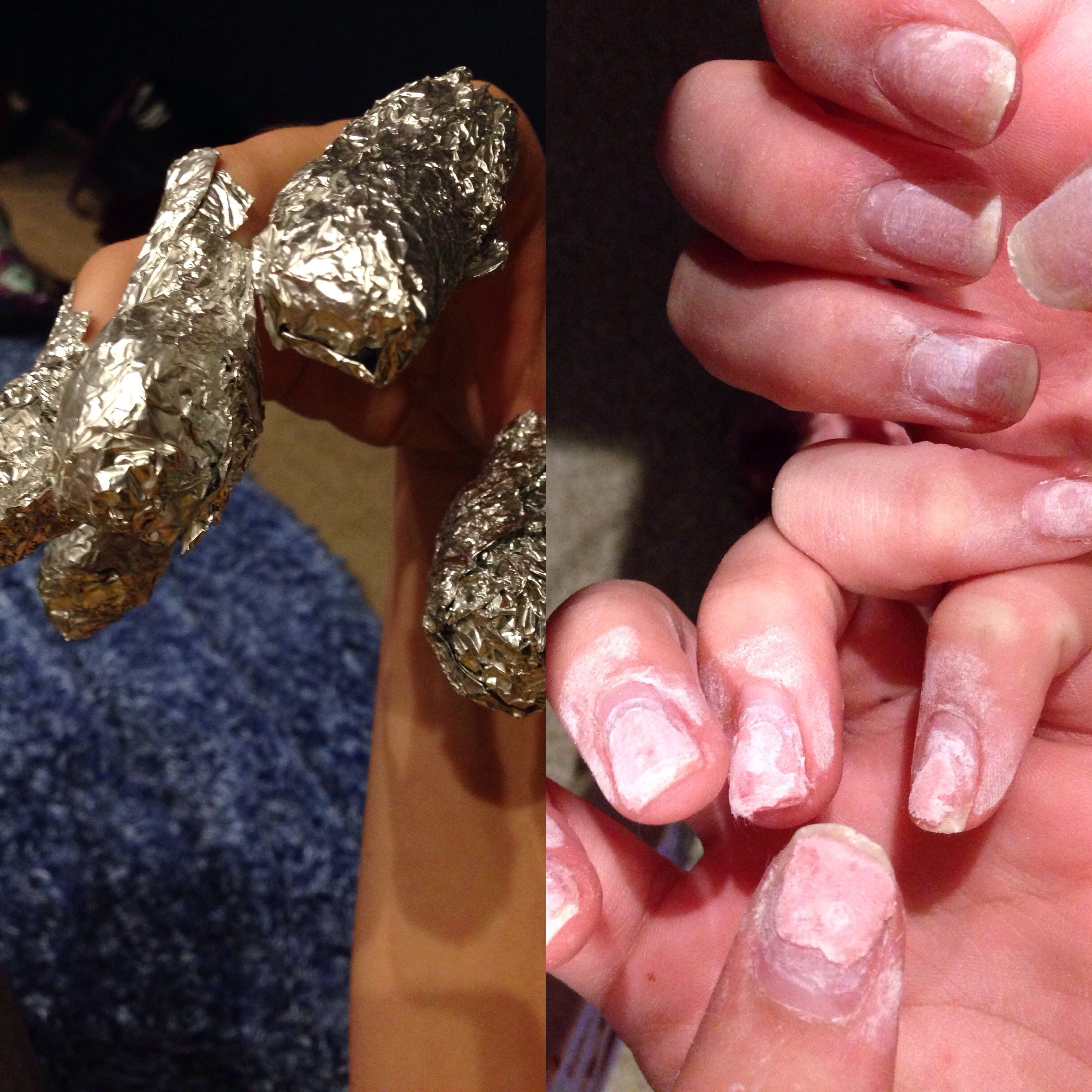 Tried To Take Off Acrylics With Acetone Nail Polish Remover Had To Sit For Hours At A Time With Stupid Tin Foil On Finge Nails Nail Polish Nail Polish Remover