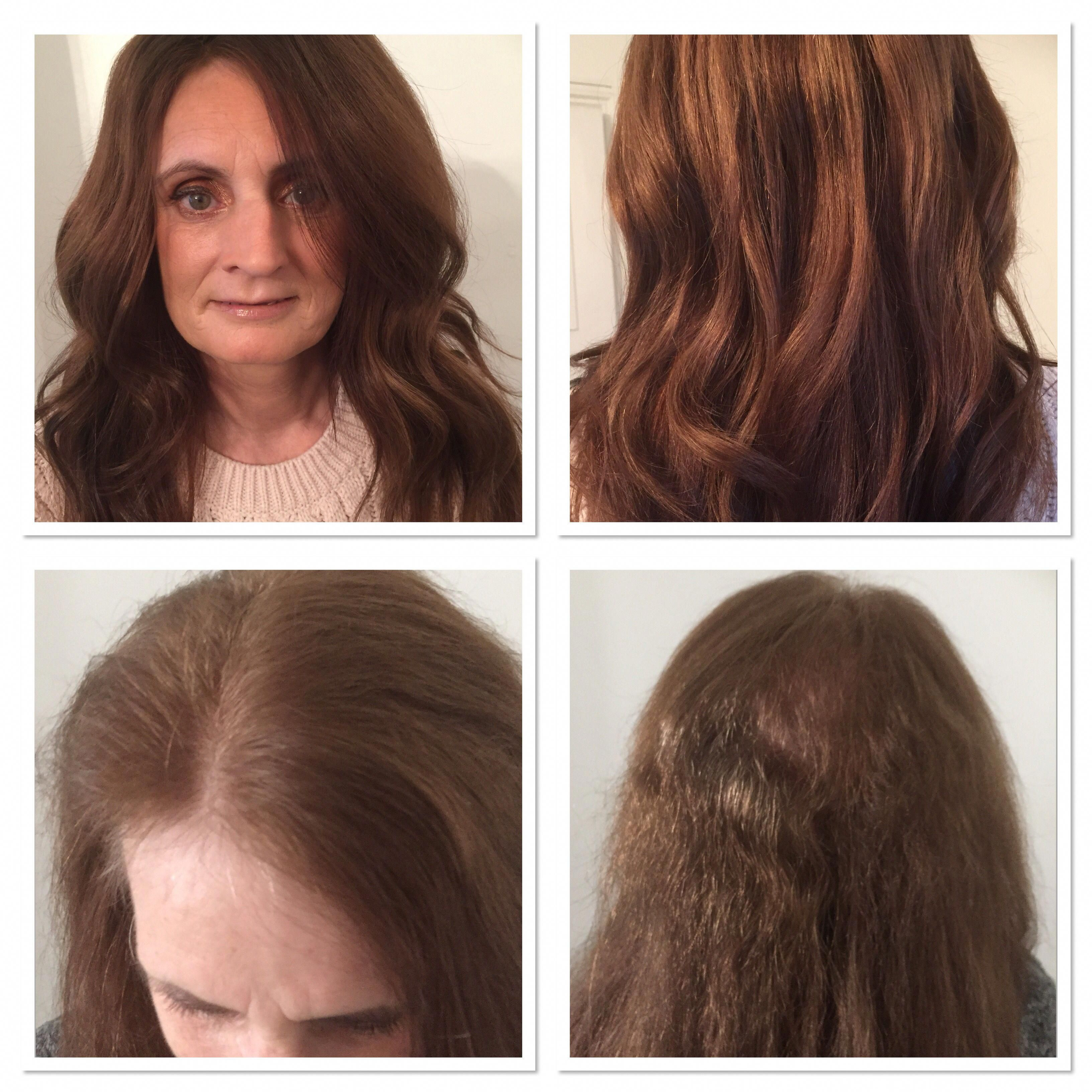 Trichotillomania Hair Regrowth After Wearing A Hair Integration System Hair Enhancers Hair Wig Hairstyles