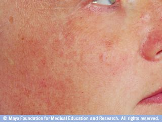 Uneven pigmentation is a sign of sun damage. Brighten and improve tone in just 2 weeks with a scientifically proven formula!  http://www.bioelements.com/lightplex-megawatt-skin-brightener---products-1154.php?page_id=147#.UnKbBvnFVgA