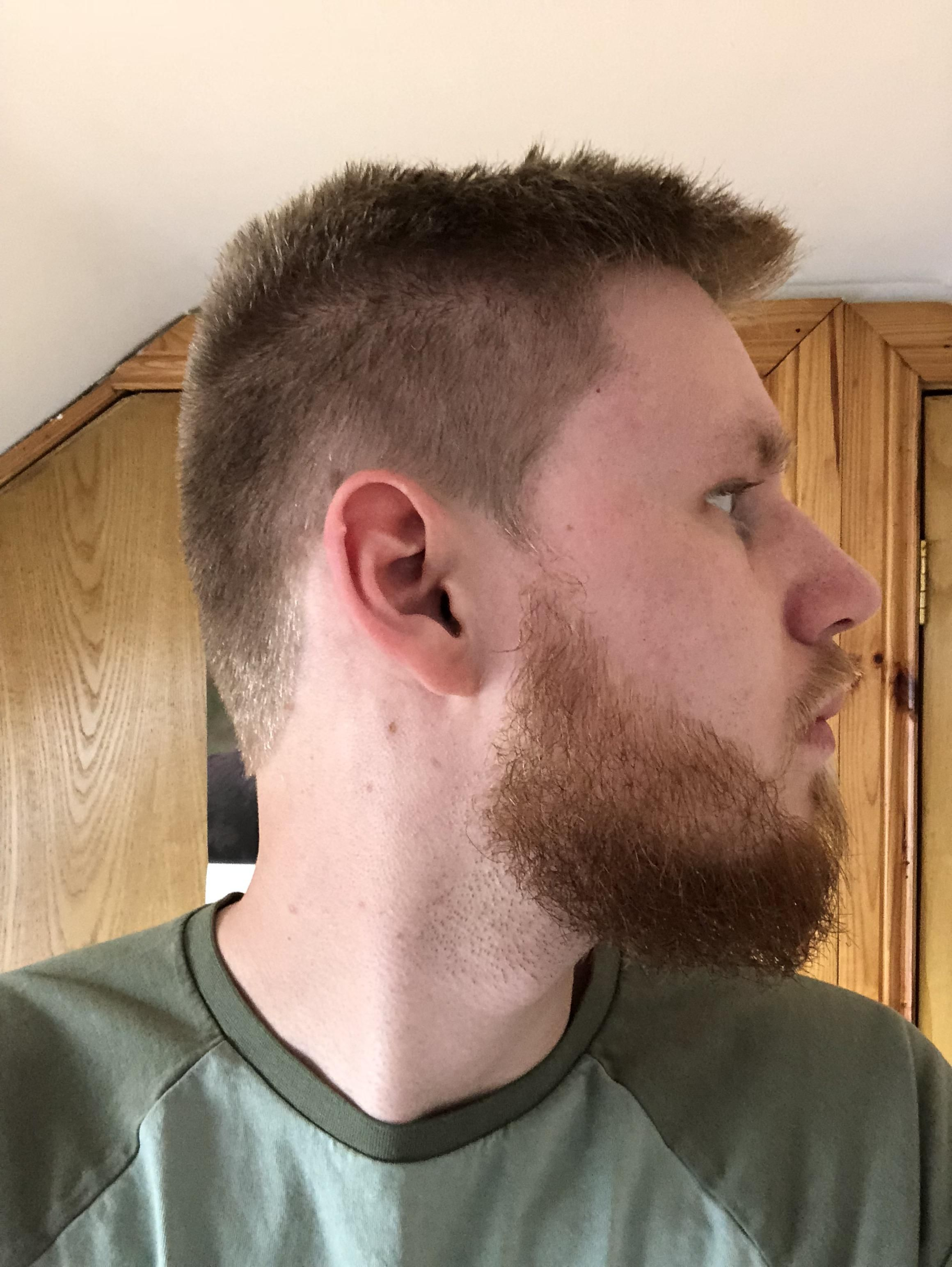 I Am Growing A Beard For The First Time In My Life Srs