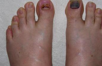 Bruised Under Toe Nail Cure Fungusundertoenailcure