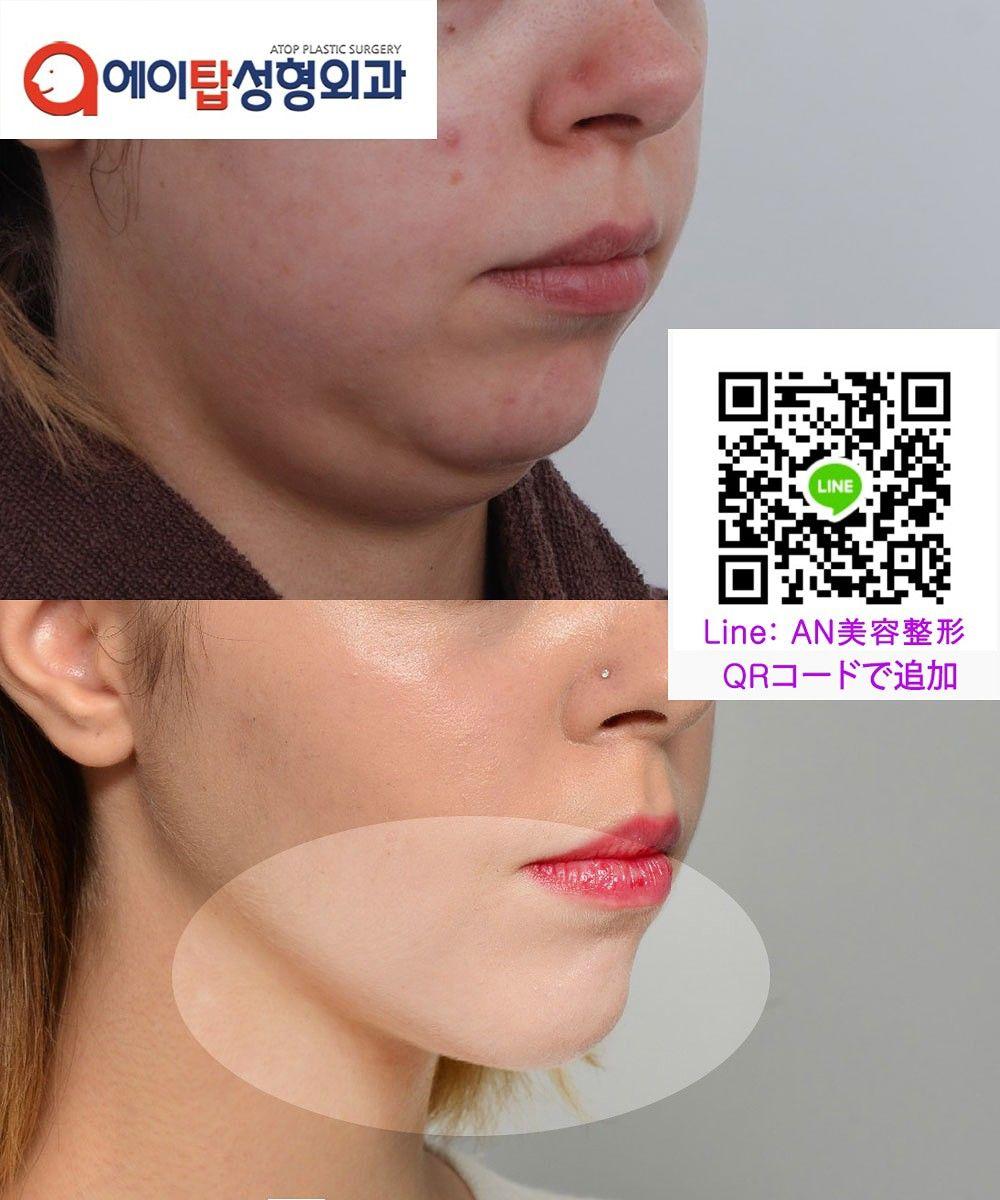 韓国 鼻 整形