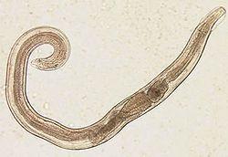 Pinworm trăiește în ea, Parazitul pică din viermi - Pinworms trăiesc în ochii lui