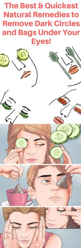 The Best & Quickest Natural Remedies To Remove Dark Circles & Bags Under Your Eyes!!! The Best & Quickest Natural Remedies To Remove Dark Circles & Bags Under Your Eyes!!!