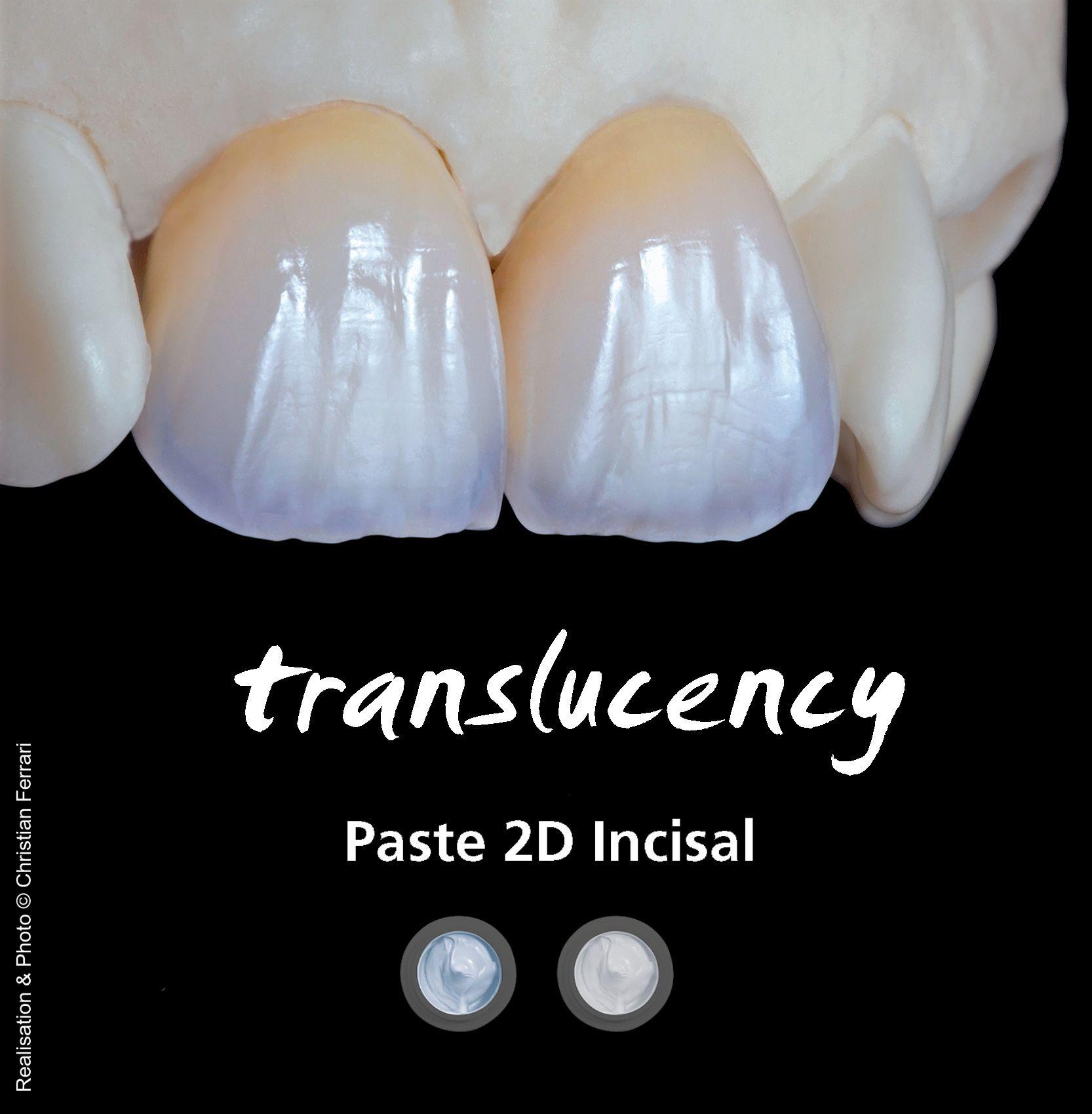 Ceramotion One Touch Paste 2d Incisal In 2020 Dental Art Dental Ceramics Dental Lab