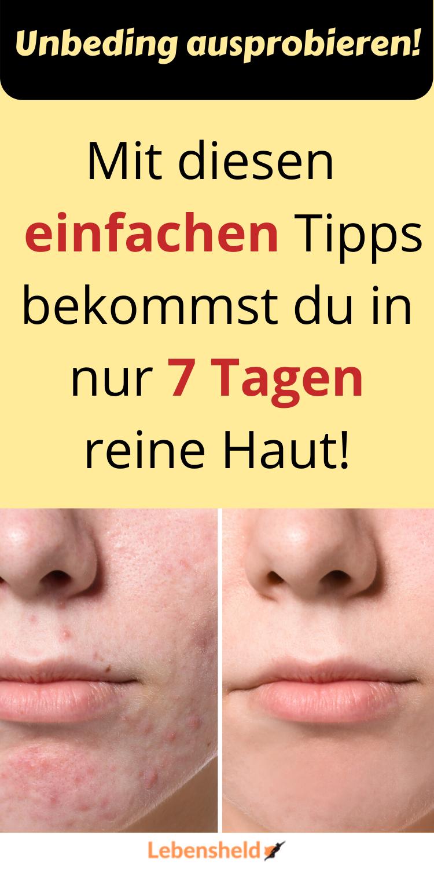 Photo of Schnell reine Haut bekommen – 10 effektive Tipps – Lebensheld