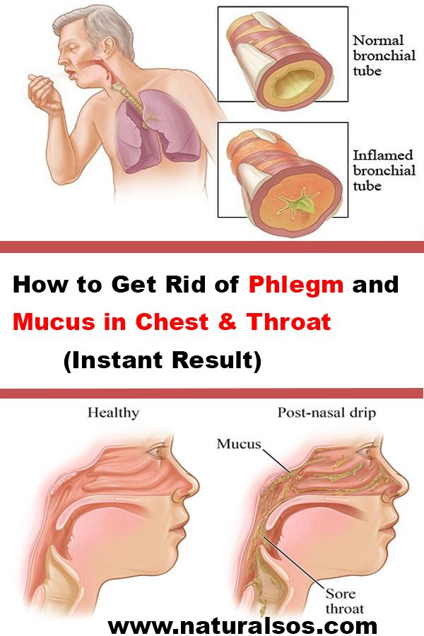 261e66a34bfaa5064ee9c429ed94d661 - How To Get Rid Of Phlegm In Infant Chest