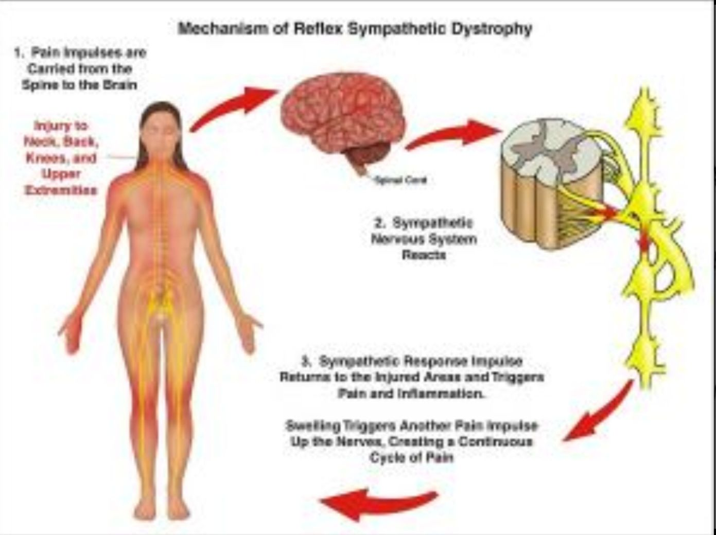 medium resolution of crps rsd pain scale affect me complex regional pain syndrome chronic illness