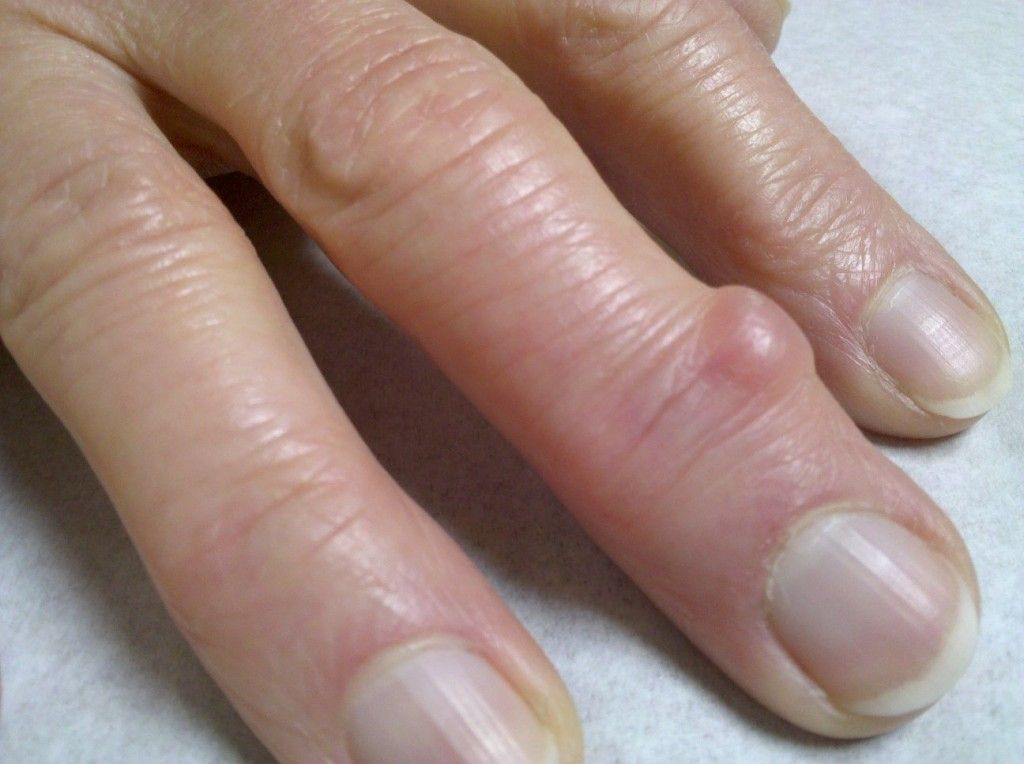 Don T Pop That Bump What Is A Mucous Cyst Cysts Hand Therapy