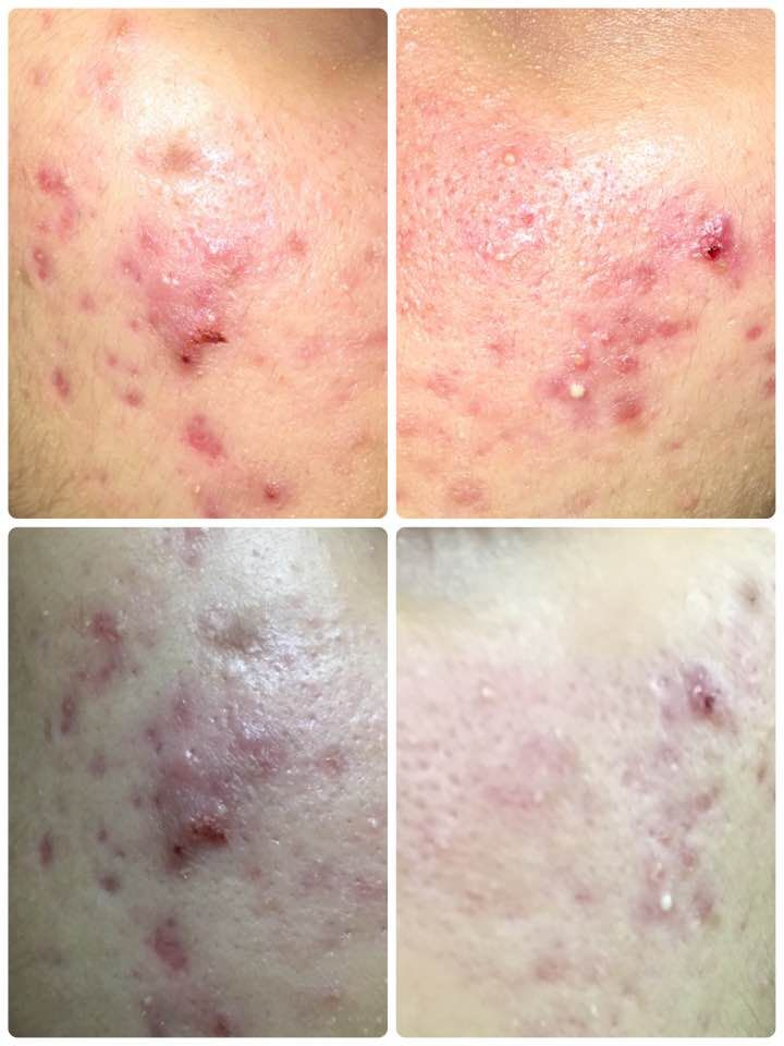 Acne Is This Post Inflammatory Erythema P I E Or Post Inflammatory Hype Post Inflammatory Hyperpigmentation Inflammatory Hyperpigmentation Makeup
