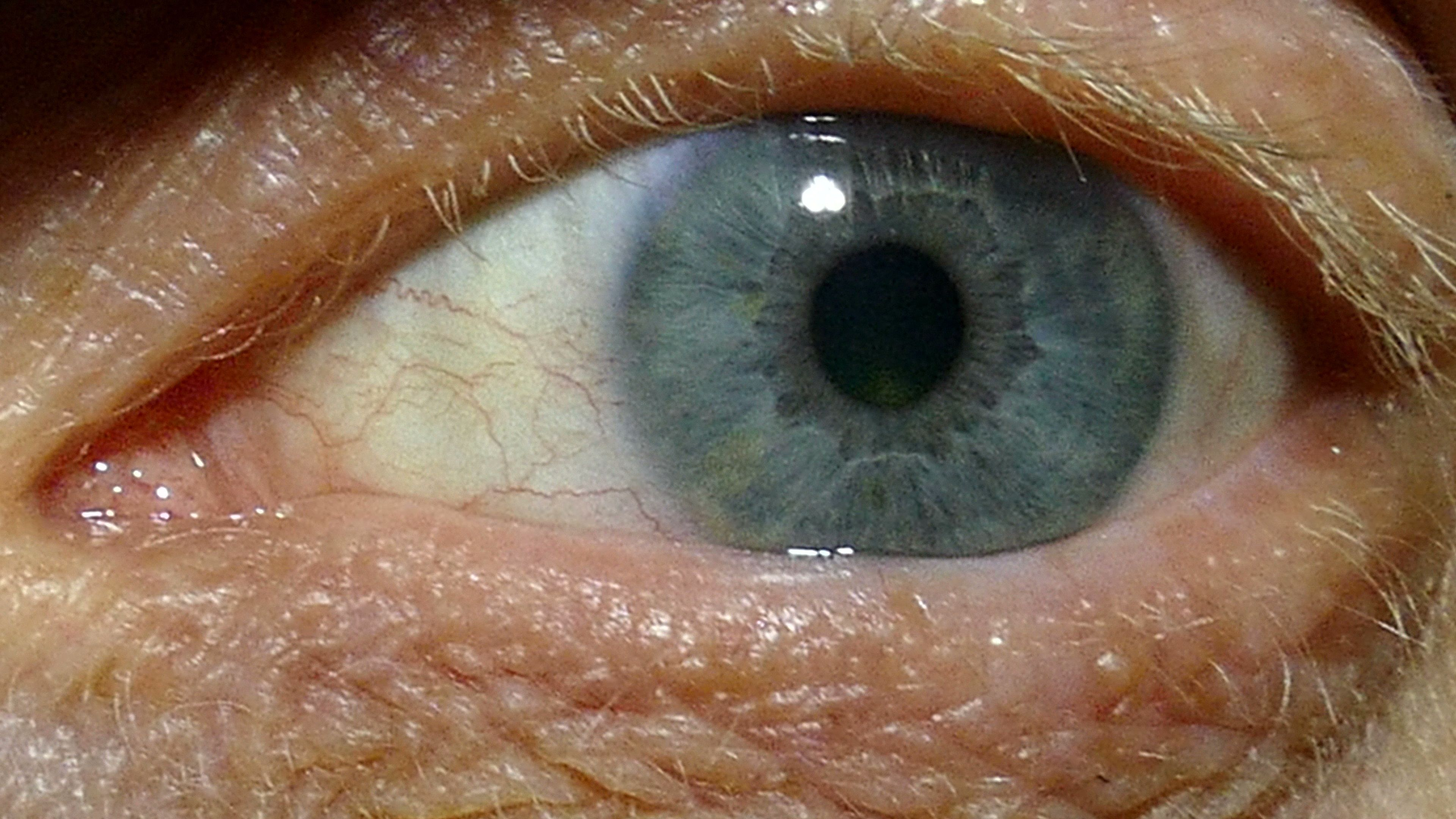 An One Eye Of Old Man With Red Capillaries Macro Stock Footage Red Man Eye Capillaries Macro Old Men Male Eyes