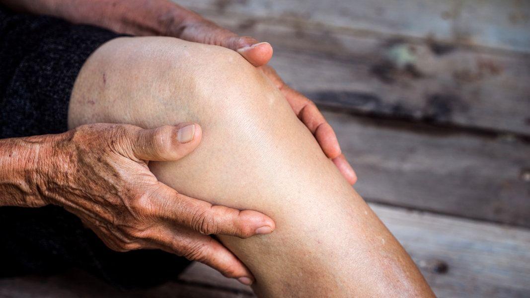Bei Arthrose an Hüfte oder Knie wird häufig ein Kunstgelenk eingesetzt. Doch die OP lässt sich oft vermeiden - mit einer Therapie gegen Fehlstellungen und Schmerzen.
