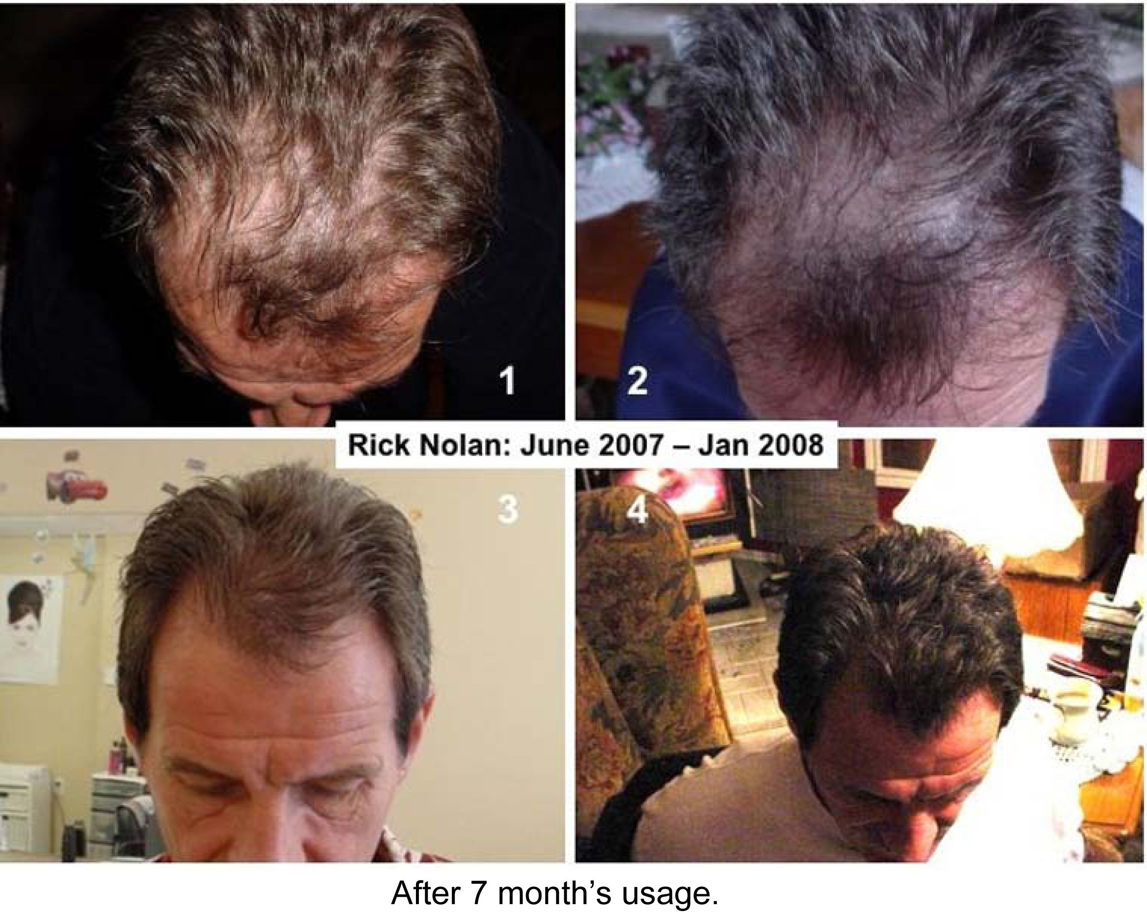 Use The Nuskin Galvanic Spa With Nurtriol Hair Products To Get Back A Full  Head Of