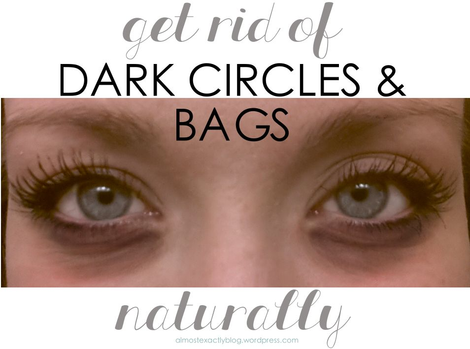 natural remedies for under-eye circles & bags
