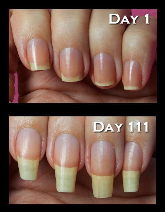 How To Get Long And Healthy Nails. 💅 | Clear nails, Makeup ideas ...