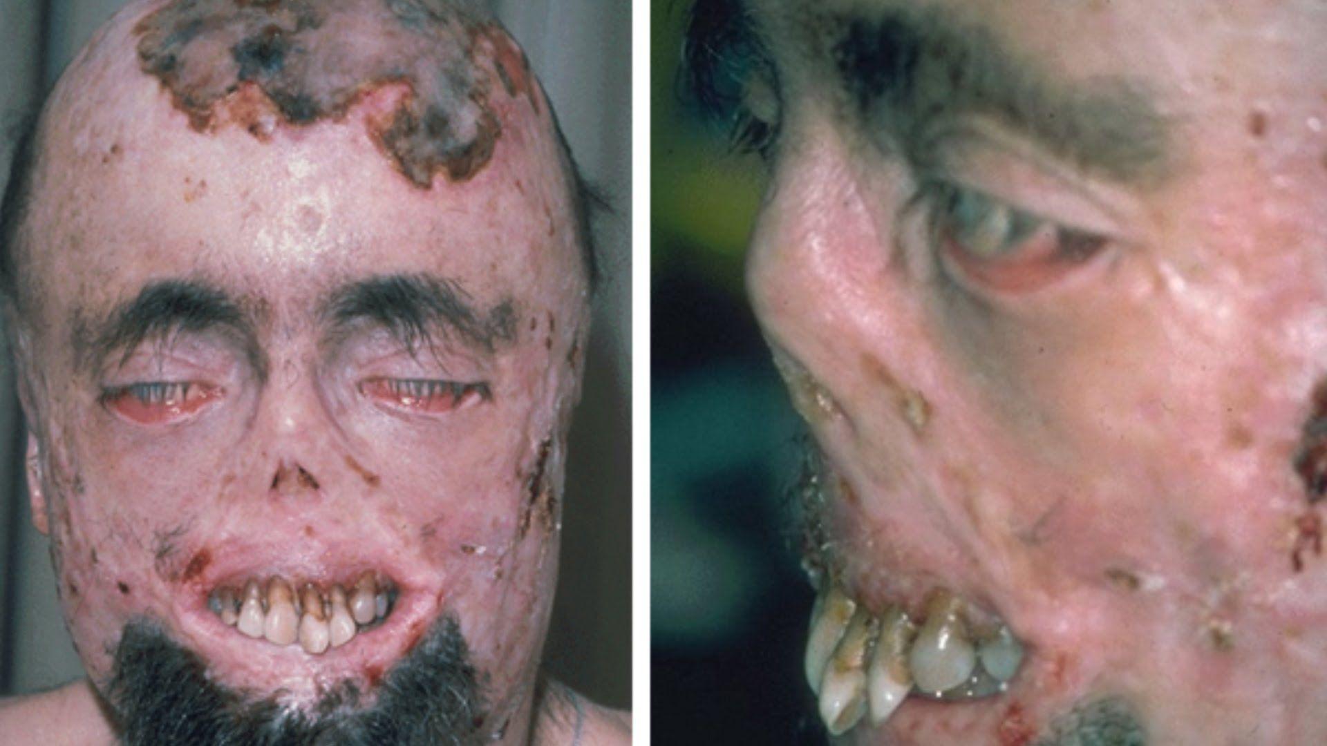 Porphyria - a disease of modern humanity