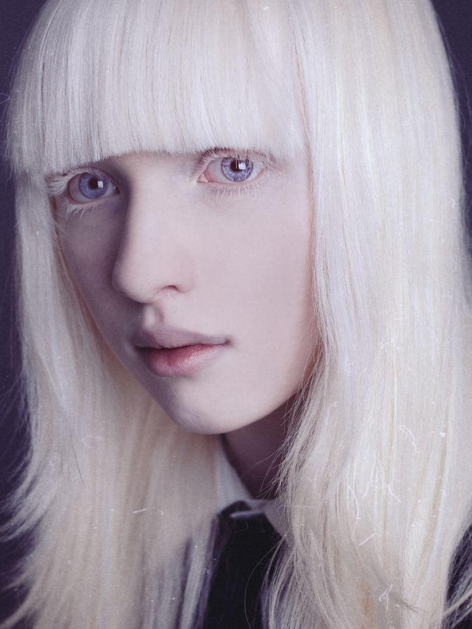 Nastya By Kumarov Amkote Michael 500px Albino Model Albino Girl Albinism