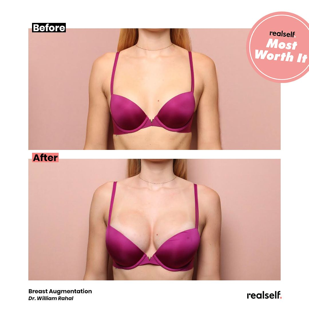 Breast Implants 6 Things I Wish I Knew Before Getting a Boob Job Breast Implants 6 Things I Wish I Knew Before Getting a Boob Job