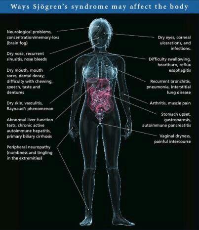 Sjogren's Syndrome Affects