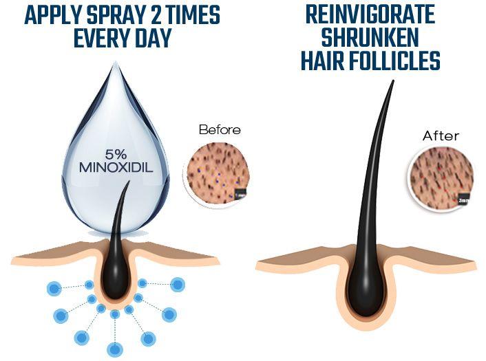 JERRI: Minoxidil side effects sexually