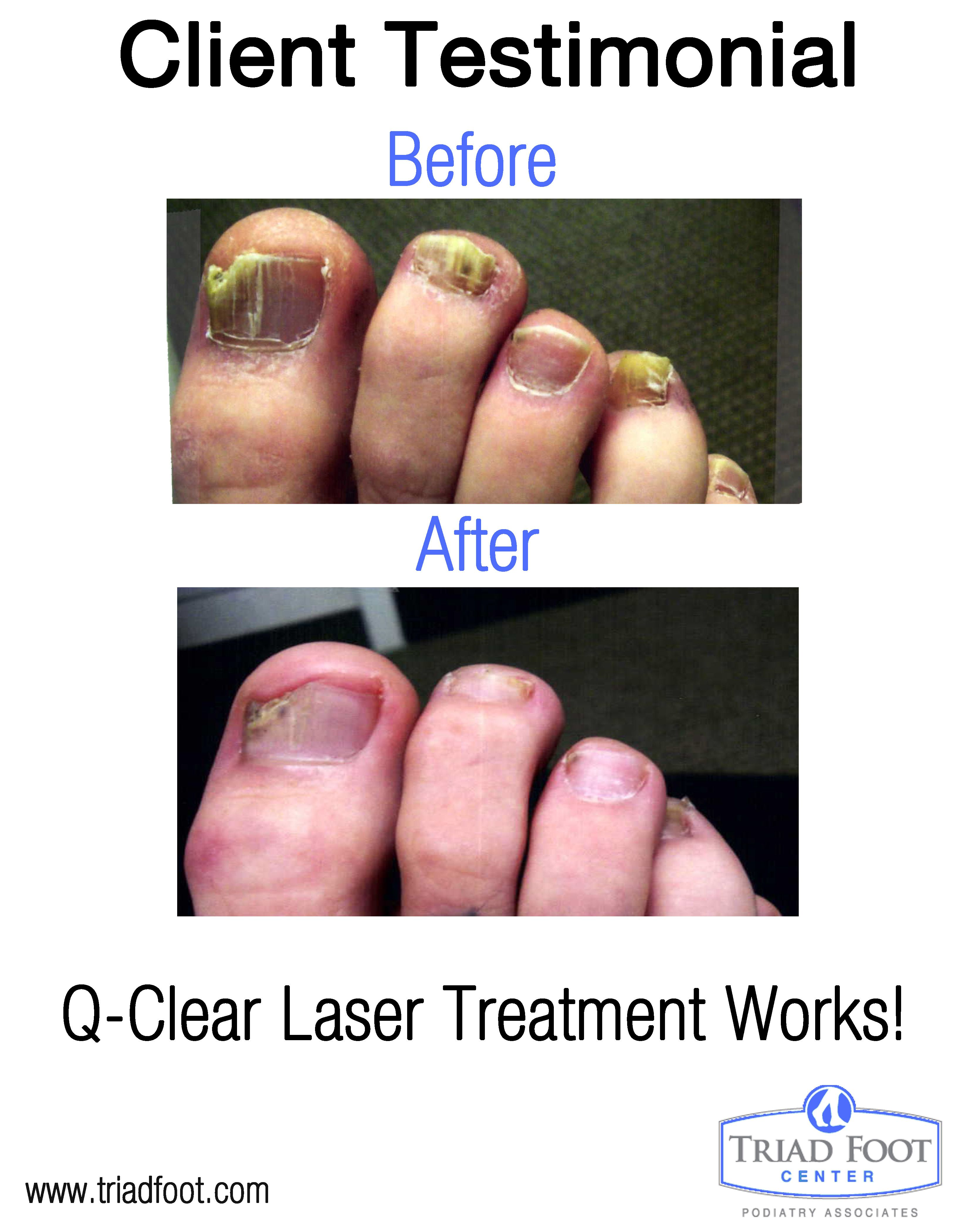 The results don't lie. Laser toenail treatment works!