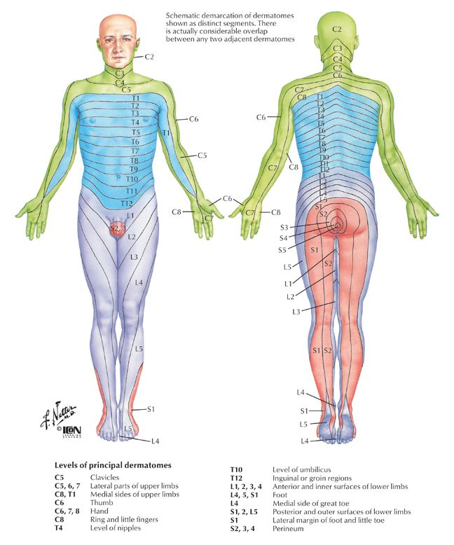 Sensory Dermatome Map | AT | Radiculopathy, Occupational ... on
