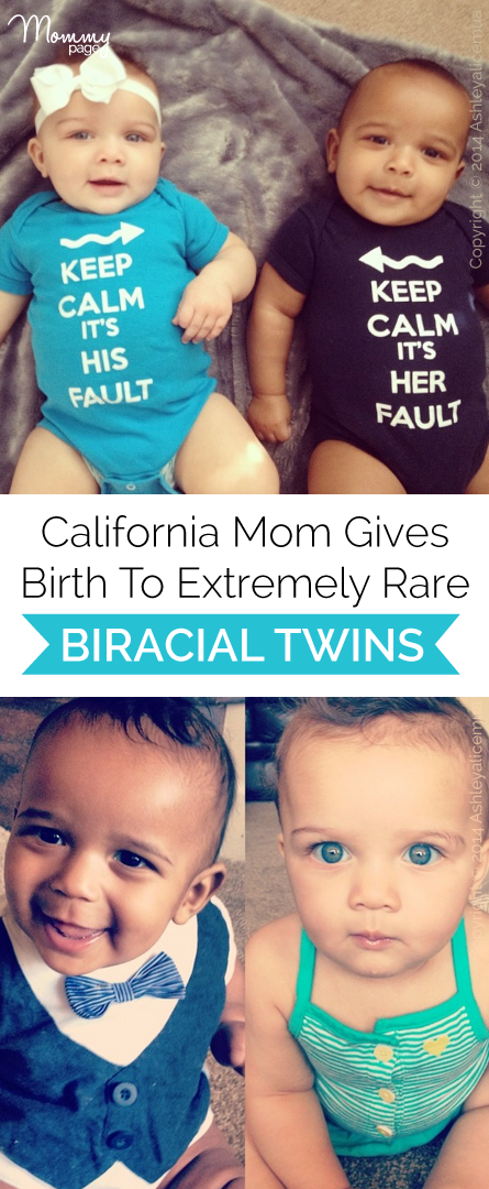 Wow! California mom gives birth to extremely rare biracial ...