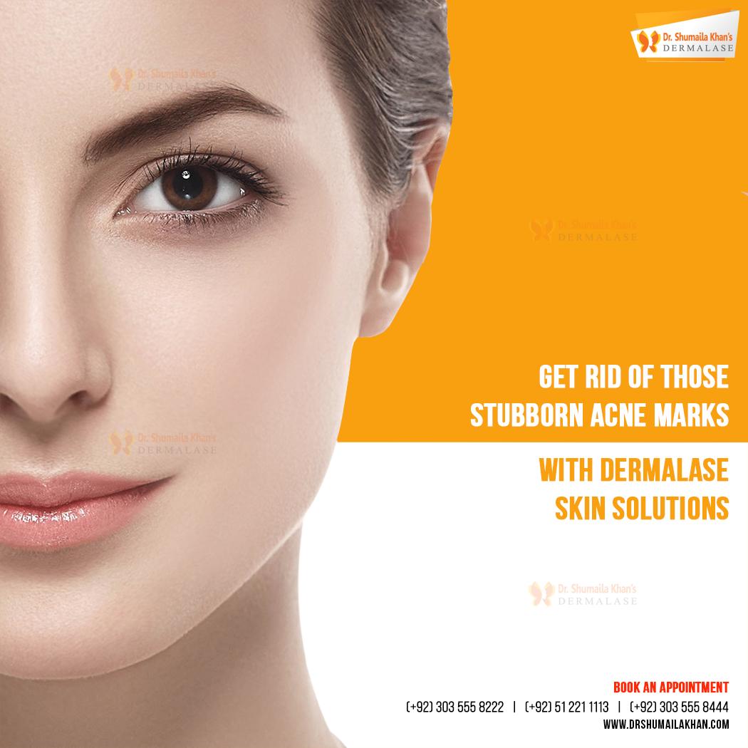 Pin On Dermalase Skin Care Laser Clinic