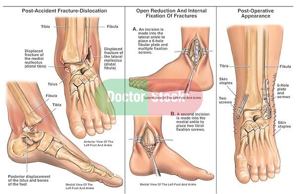 Exactly what happened to me | Lower limb, ankle | Ankle