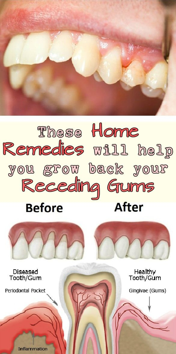 Home Remedy For Bleeding Gums After Tooth Extraction
