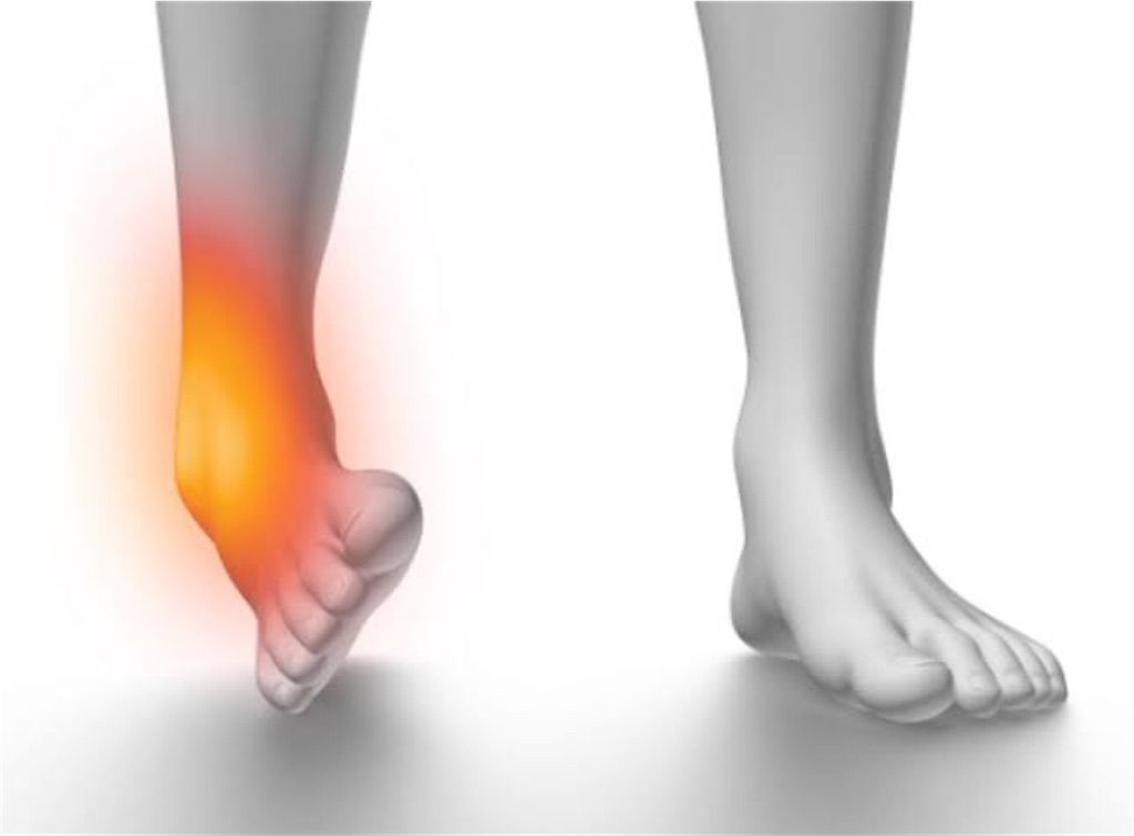 痛い 腫れ ない 足首 て