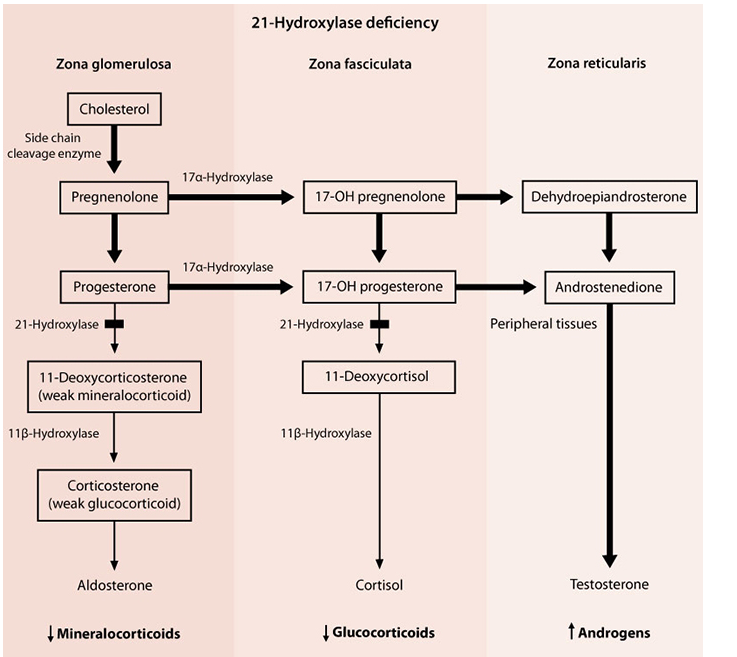 21 Hydroxylase Deficiency The Most Common Form Of Cah Congenital