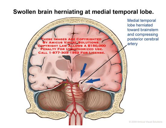 Swollen Brain Herniating At Medial Temporal Lobe Medical H