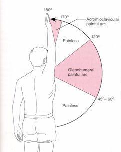 PT Management of Shoulder Impingement Syndrome