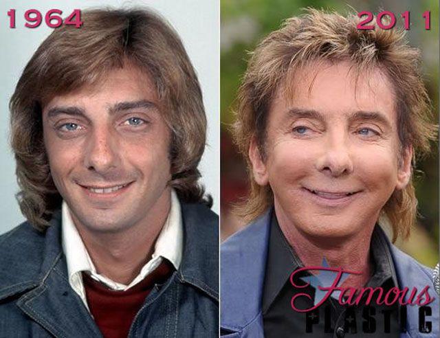 10 Best Bad celebrity plastic surgery images | Sztárok ...