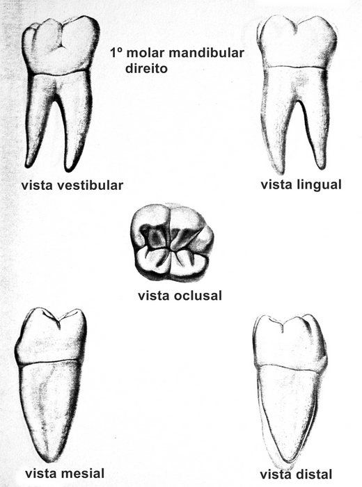 1º molar inferior - tooth 4.6 | Dental | Pinterest | Odontología ...