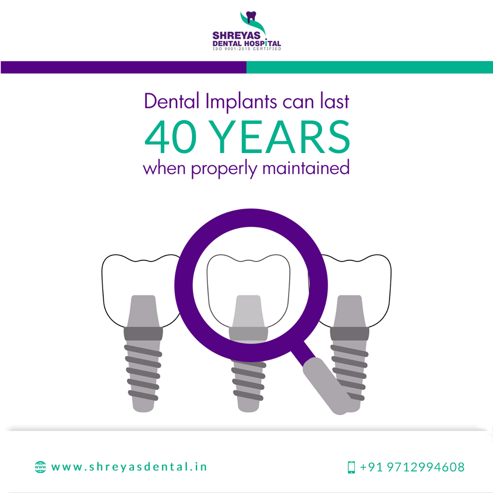 Best Dental Implant In Ahmedabad Dental Implant Clinic In Naranpura Ahmedabad Dental Implants Dental Hospital Best Dental Implants