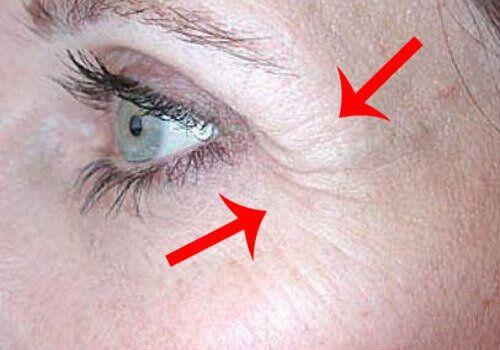 Tässä artikkelissa selvitämme mistä silmän alueen rypyt aiheutuvat ja miten niitä voi häivyttää ja hoitaa luonnollisilla menetelmillä.