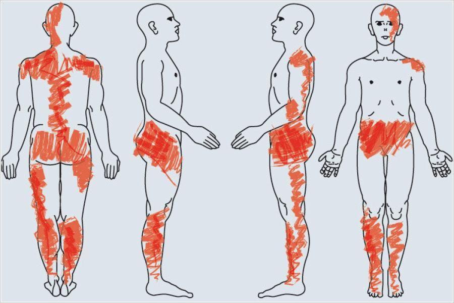 Fibromyalgie: Forscher finden kaputte Nerven bei Schmerzkrankheit ...