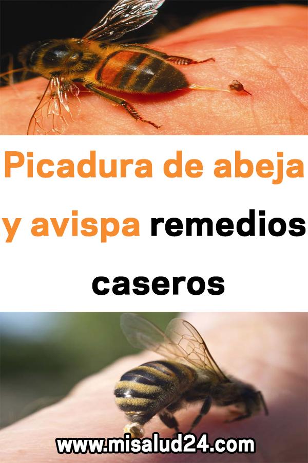 Picadura De Abeja Y Avispa Remedios Caseros Remedios Salud Picadura De Abeja Insects