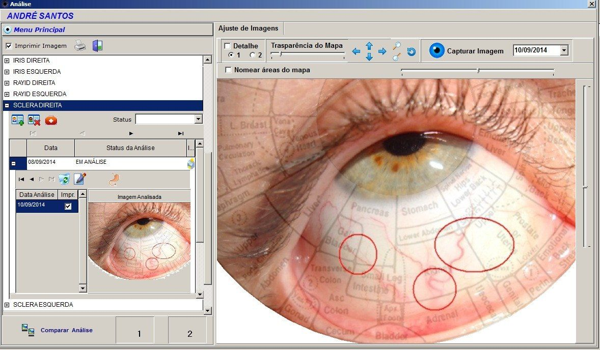 iridologia software