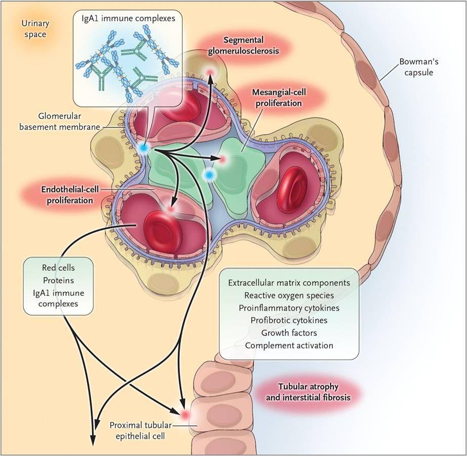 Pin by Shanna Wells on Pathophysiology | Kidney symptoms, Kidney