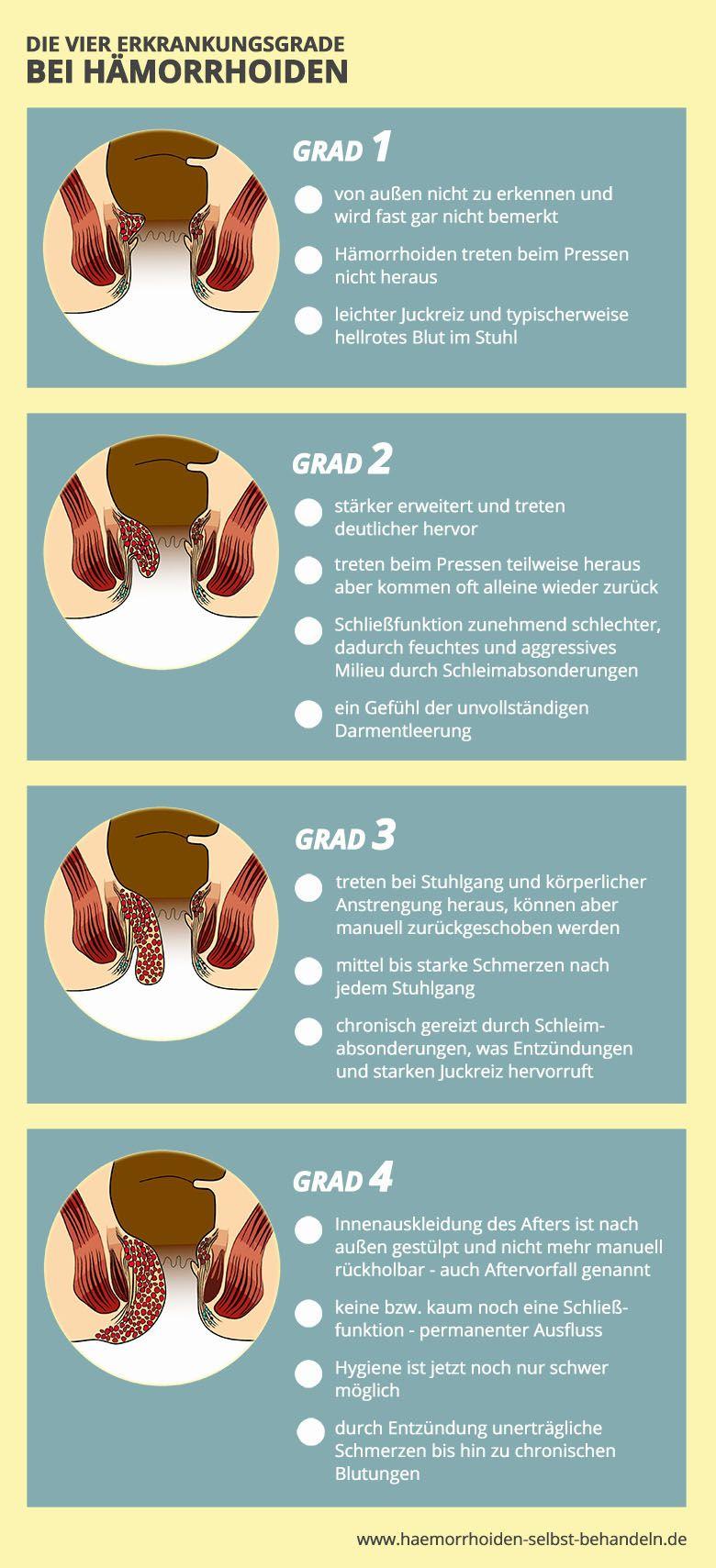 Die vier (4) Erkrankungsgrade bei Hämorrhoiden ...